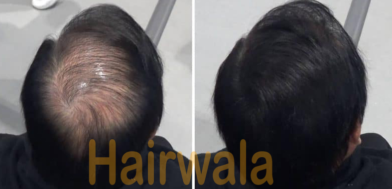 Hairwala - hair building fiber in ahmedabad