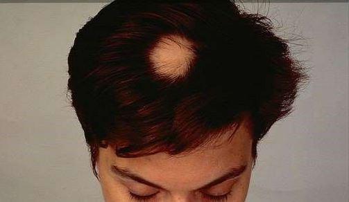 hairwala Customized Patch
